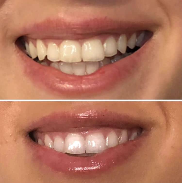Zuby pred a po používani SmilePen