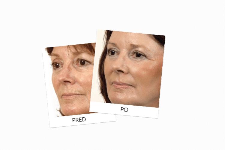 Mikroemulzia Botox Power skúsenosti
