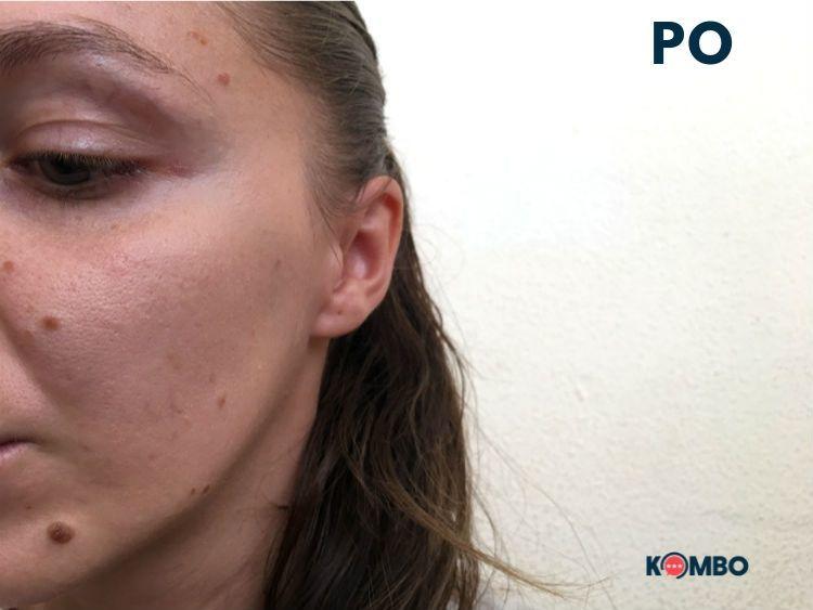 Po používaní Kamedis kozmetiky